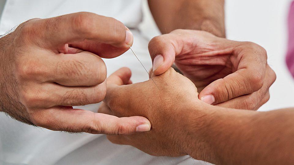 curso de acupuntura tung en malaga